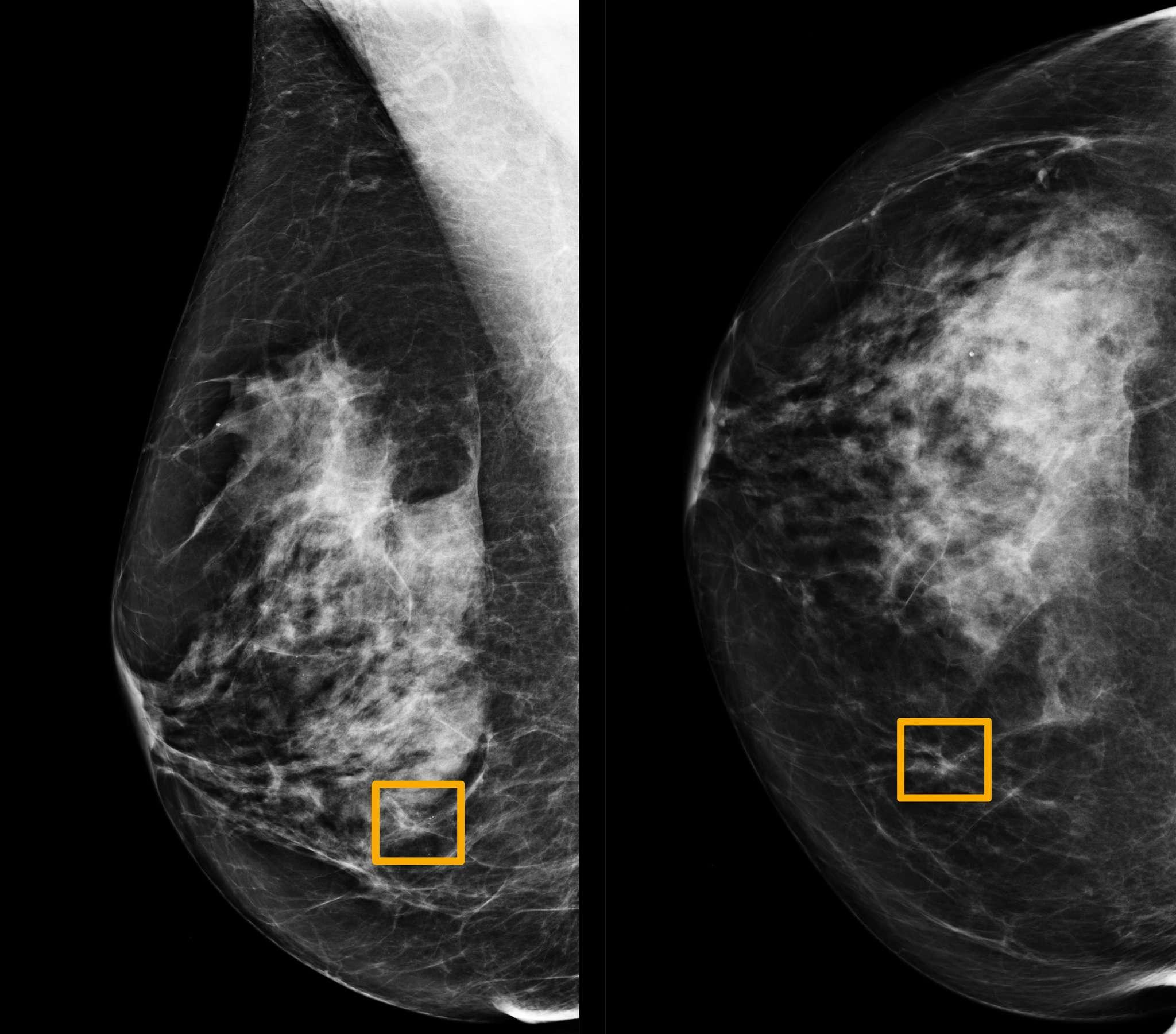 El cuadro amarillo indica dónde la inteligencia artificial encontró cáncer escondido dentro del tejido mamario. Seis radiólogos anteriores no pudieron encontrar el cáncer en mamografías de rutina. Crédito: Universidad Northwestern